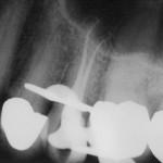 Wurzelbehandlung Zahn 24